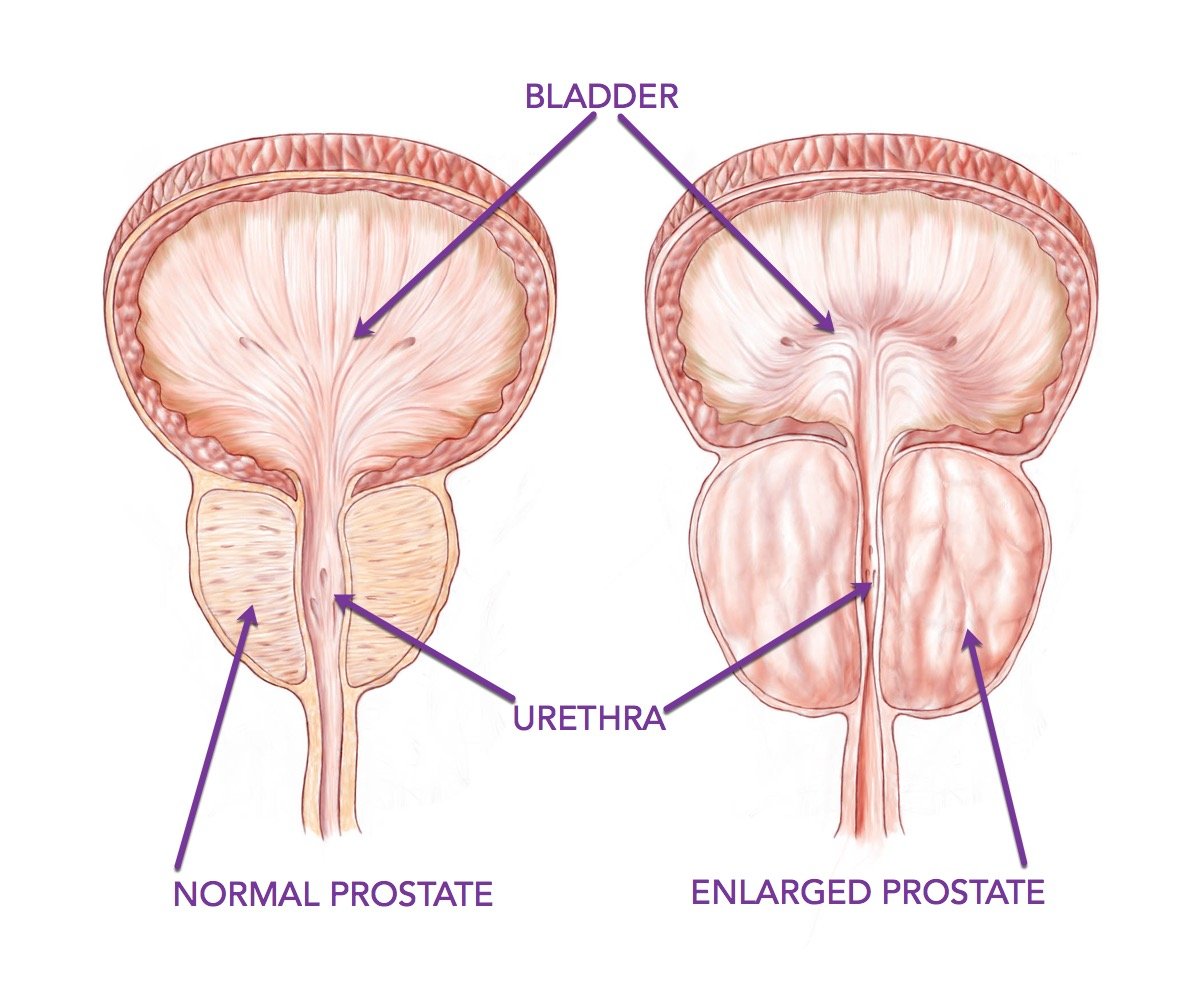 The Male Pelvic Floor Cathy Watson Physiotherapy Vernon Bc