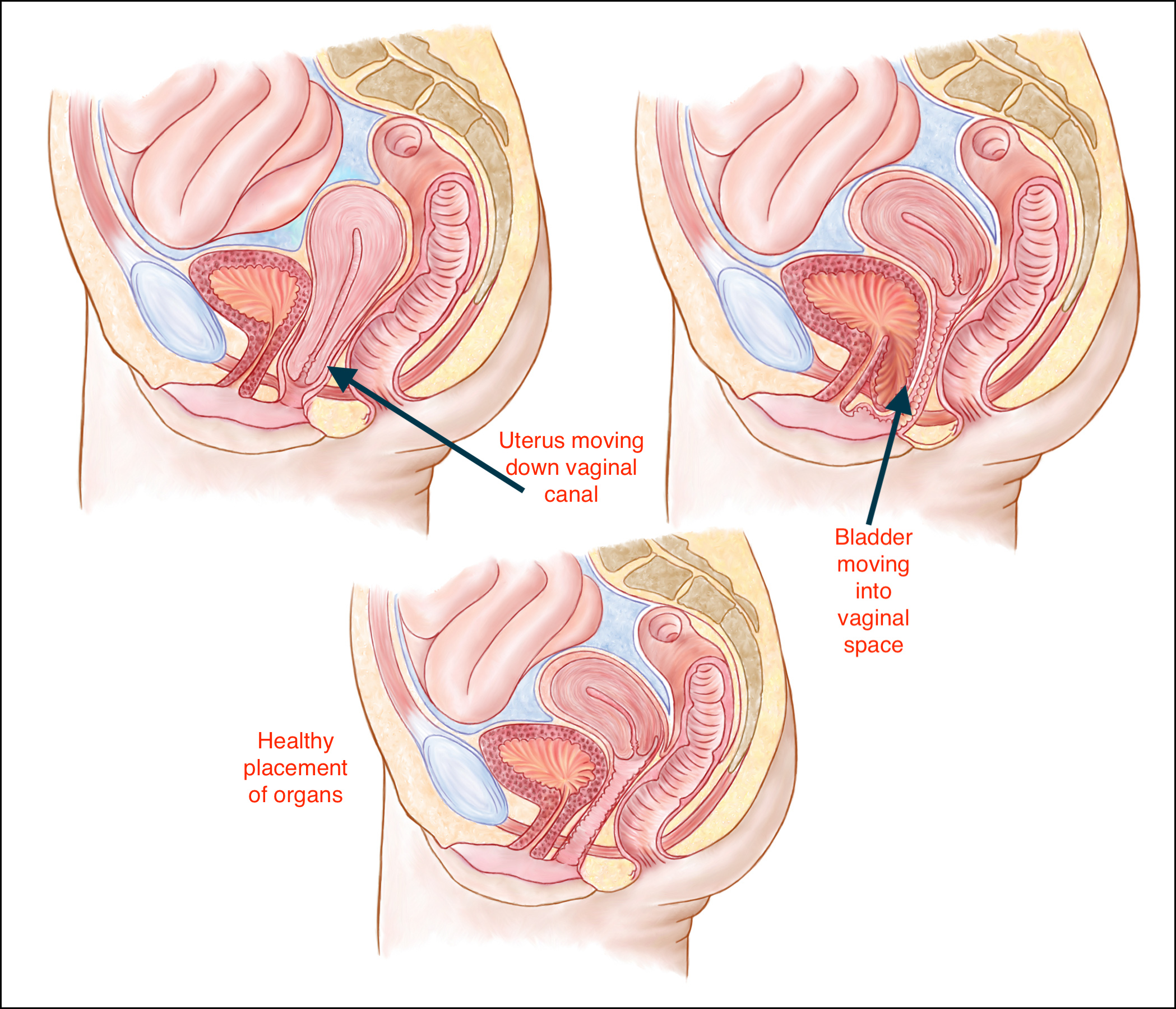 The Problematic Pelvic Organ Prolapse   Cathy Watson Physiotherapy ...